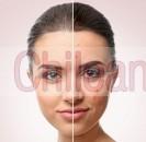 dermatologo. acné, manchas en la piel, rosácea, lunares.
